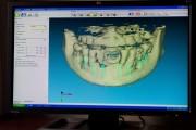 Escaner dental