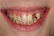 Caso 1 Implantes dentales ANTES