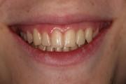 Caso 1 Implantes dentales DESPUÉS